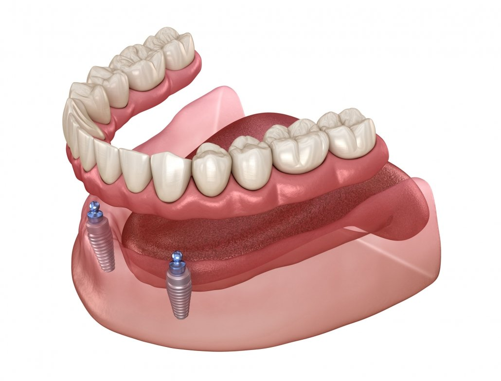 Implant Supported Dentures Sarasota FL